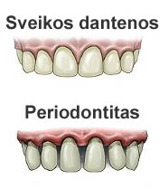 Periodontito ligos simptomai