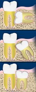 Netaisyklingi protiniai dantys