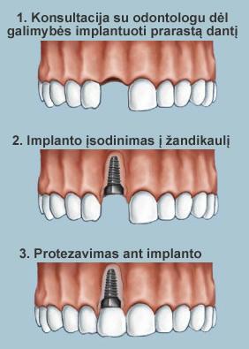 Kaip vyksta implantacijos procesas