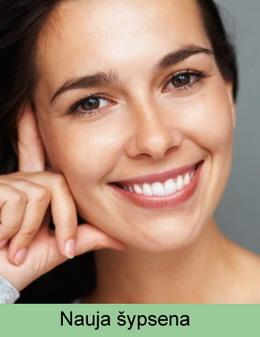 Šypsena po dantų implantavimo