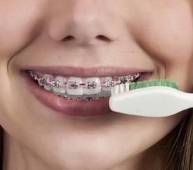 Dantų breketų priežiūra
