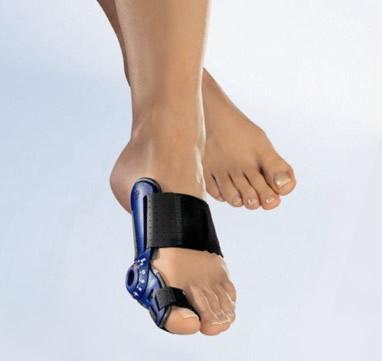 Iškrypęs kojos nykštys